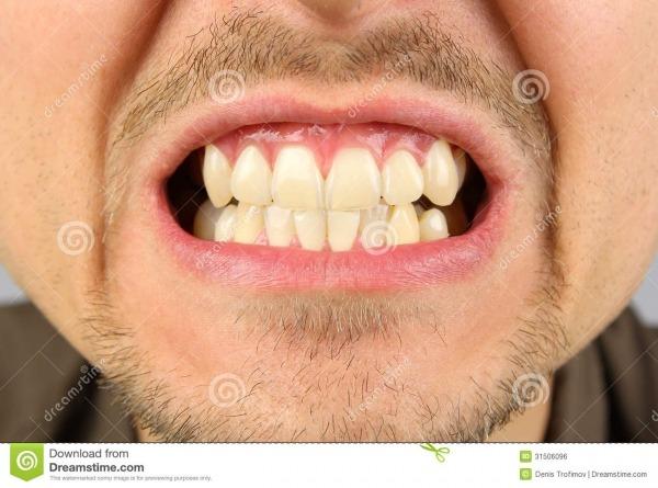 Boca Masculina, Sorrir Forçadamente Do Dente Foto De Stock